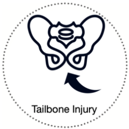 Current or Previous Tailbone Injury